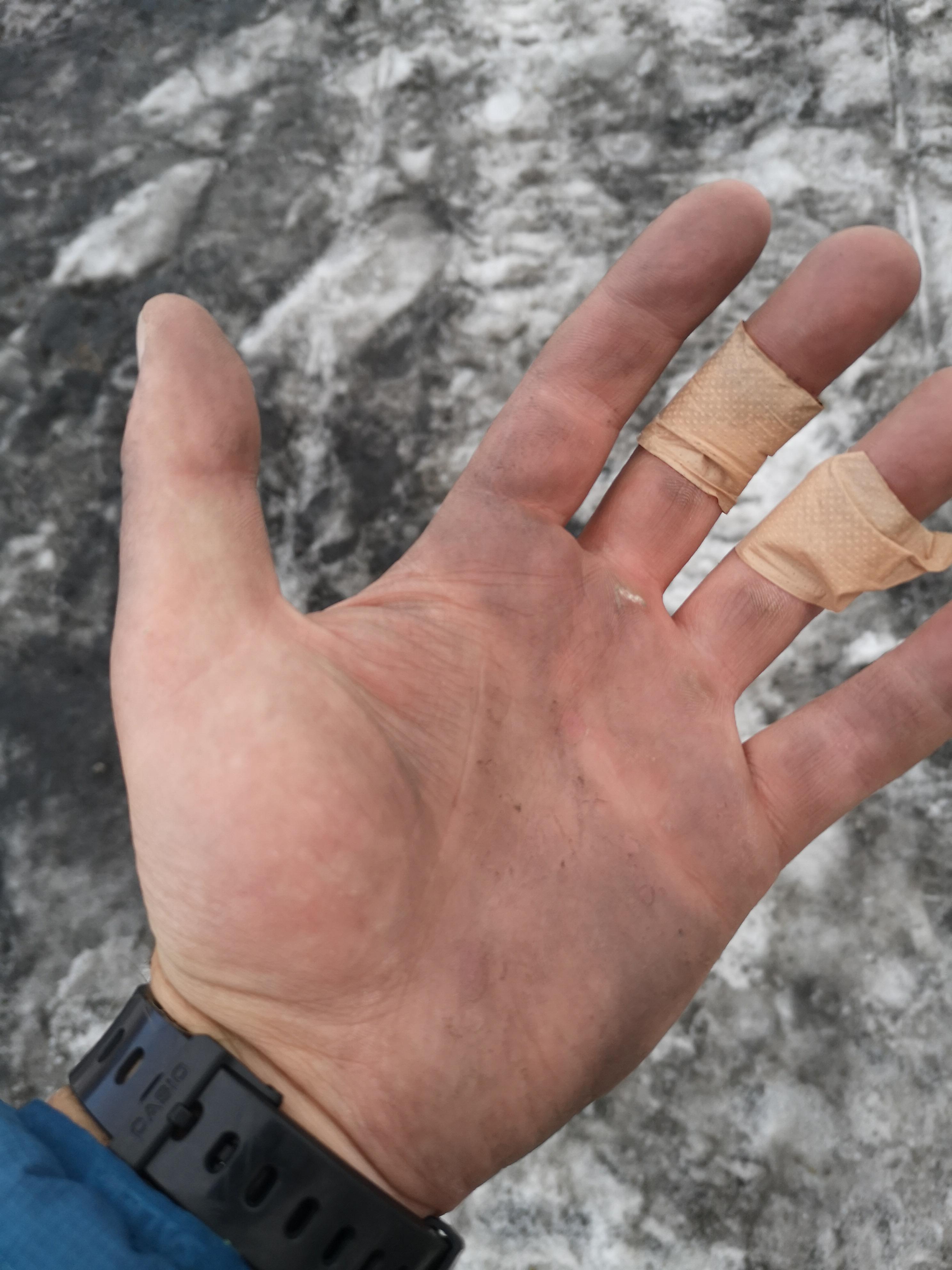 moje ręce po ferracie der Johann (zapomniałem rękawiczek)
